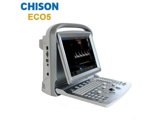 Chison Medical Equipment Eco5 Portable Color Doppler Ultrasound pictures & photos