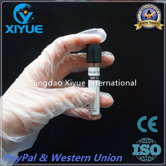 ESR Disposable Vacuum Blood Collection Tube with High Quality