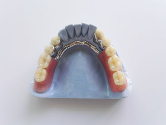 Cast Framework Add Acrylic Dentures with Teeth Set-up &Finish pictures & photos