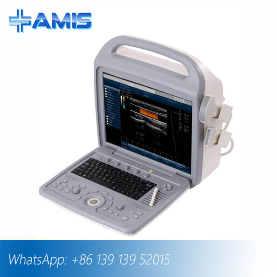 Medical Equipments Portable Ultrasound Scanner Am-580A Color Doppler pictures & photos