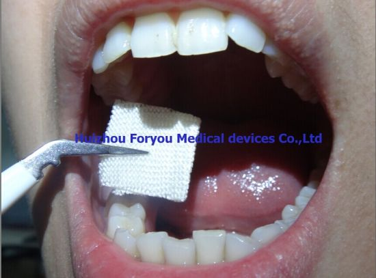 Hemostatic Dental Gauze with FDA Certificate pictures & photos