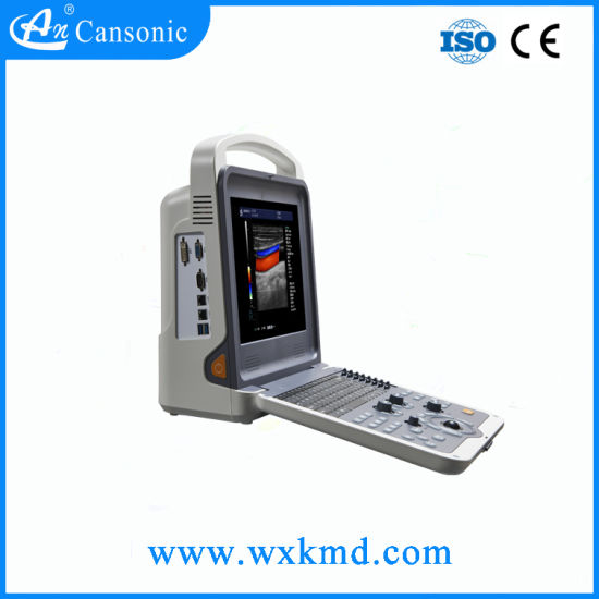 Hot Sale Color Doppler Ultrasound Scanner pictures & photos