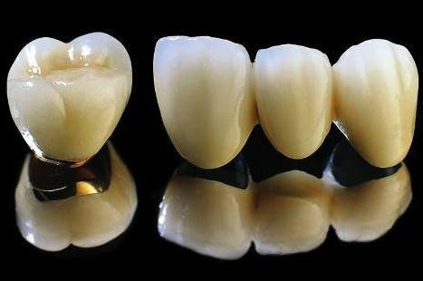 Denture Porcelain Fused to Metal Crowns From Shemzhen Minghao Dental Lab pictures & photos