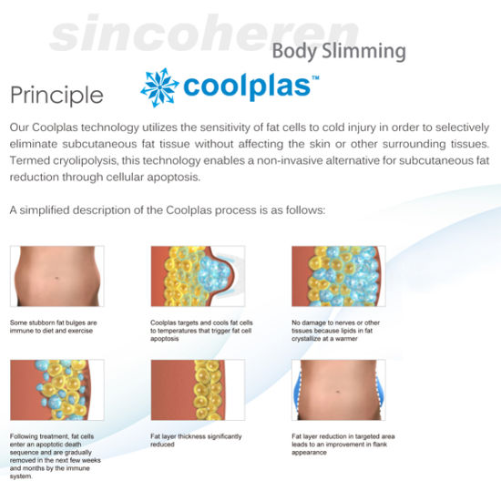 Cryolipolysis Fat Freezing Slimming Machine for Fat Reduction/Cellulite Reduction pictures & photos