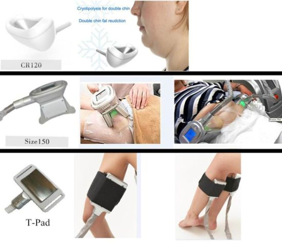 China Cryotherapy Fat Freezing Device Weight Loss