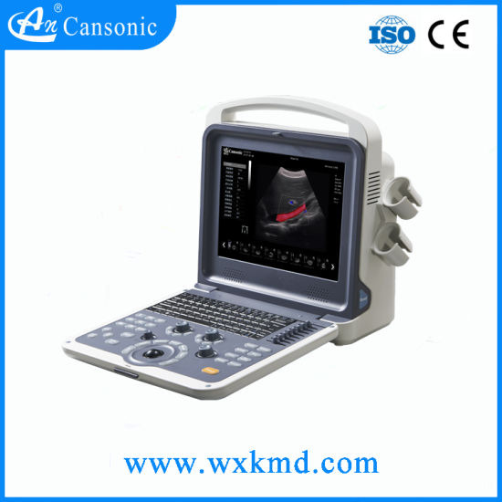 Cansonic Portable Color Doppler Ultrasounic with Various Probes pictures & photos