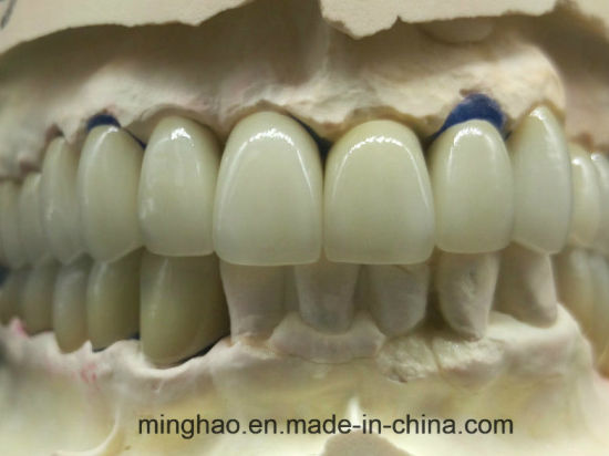 Metal Ceramic Crowns Pfm Co-Cr From Shenzhen Minghao Dental Lab pictures & photos