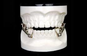 Fixed Herbst Appliance Upper or Lower/Orthodontic Retainer