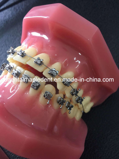 Dental Material Infinity Self Ligating Brackets with Instruments pictures & photos