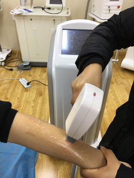Popular Powerful Germany Emitter 808nm Diode Laser Hair Removal pictures & photos