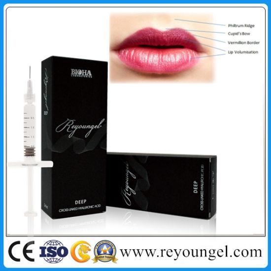 China Reyoungel Hyaluronate Acid Lip Fullness Dermal Filler