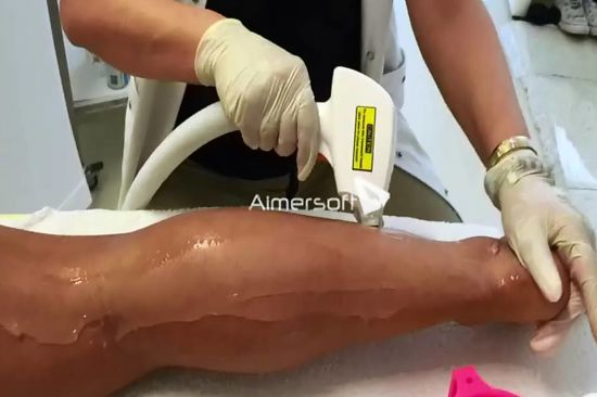 Alma Laser Soprano Diodelaser Hair Removal Shr IPL Laser Price Laser Rust Removal for Permanent Hair Removal pictures & photos