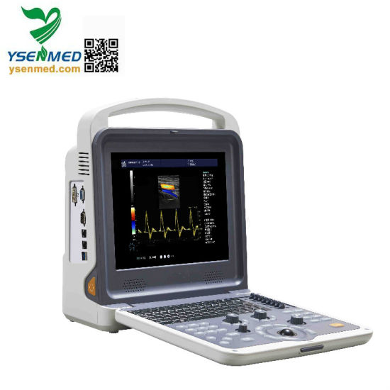 Ysb-K2000 Hospital Machine Medical Equipment China Medical Diagnostic System 4D Portable Color Doppler Ultrasound pictures & photos