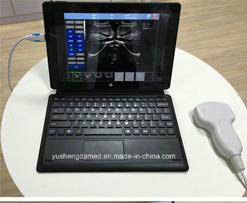 Hot Sale High Quality Full Digital Wireless USB Probe Ultrasound pictures & photos