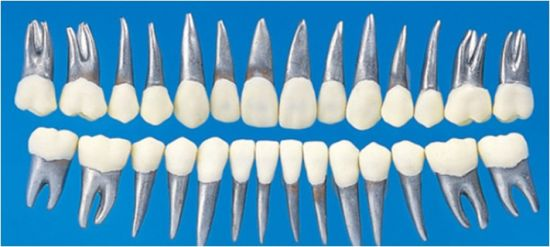 China Permanent Teeth Metal Root Resin Crown for Orthodontic