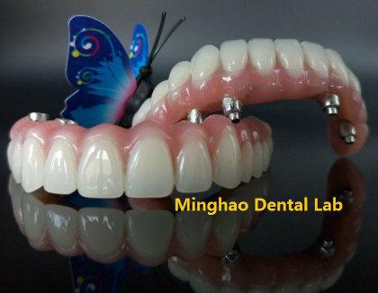 Dental Restoration of Implant Hybrid Denture From Shenzhen Minghao Dental Lab