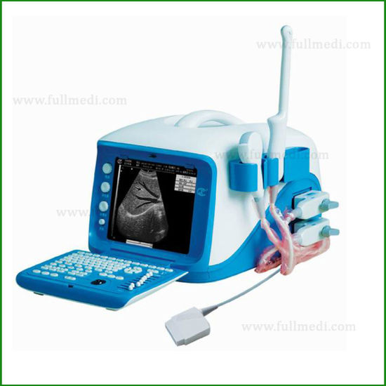 FM-9001b Medical Equipment Portable Color Doppler Ultrasound Scanner for Pregnancy pictures & photos