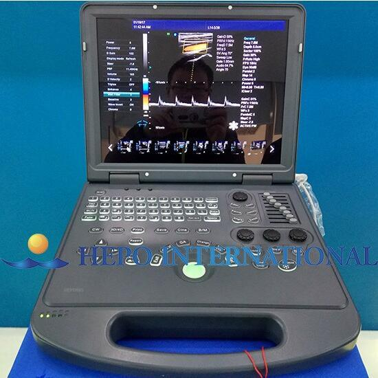 Medical Equipment Digital Color Doppler Portable Ultrasound pictures & photos