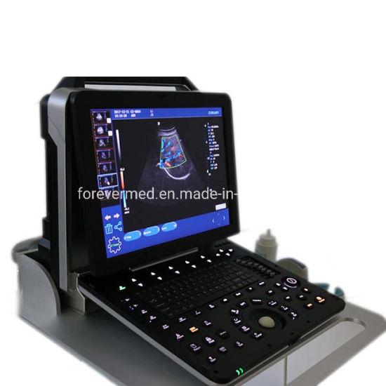 Factory Wholesale Excellent Imagefull Digital Color Doppler Ultrasound Diagnostic System