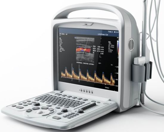 Medical Wireless Ultrasound Probe / Portable Ultrasound Machine/Portable Ultrasound Scanner pictures & photos