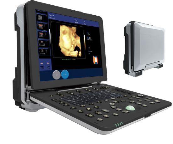 Portable Echocardiography Color Doppler Ultrasound Scanner for Pregnancy