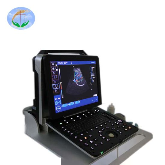 Ultrasound Diagnostic System Portable 4D Color Doppler with Convex and Linear Probe