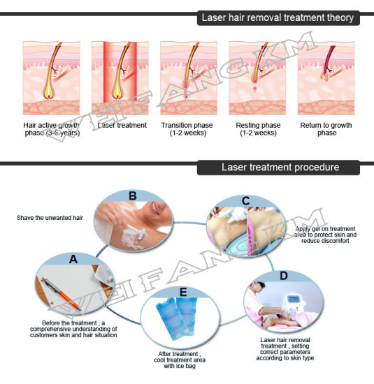 Hair Depilation 810nm Diode Laser Pernament Hair Removal Beauty Machine pictures & photos