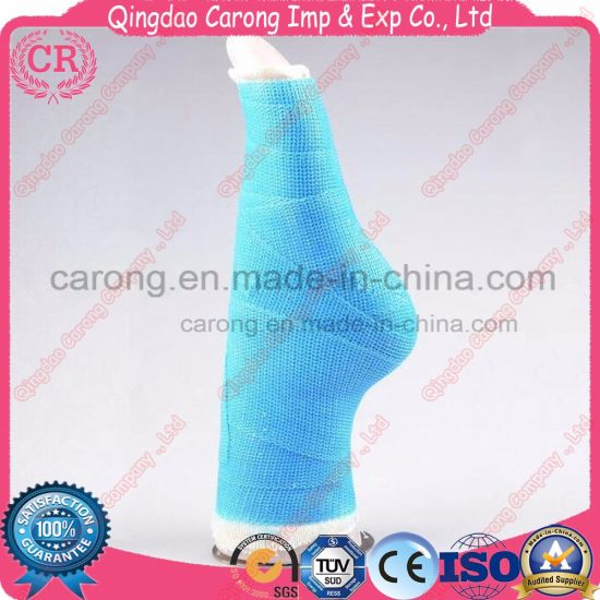 Medical Orthopedic Plaster Fabric Bandage Fiberglass Casting Tape pictures & photos