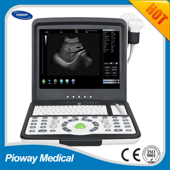 Medical Hospital Equipment Portable Ultrasound Scanner, Ultrasound Machine (PW-190)