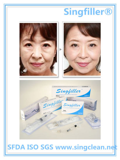 Anti-Wrinkles Cross-Linked Hyaluronic Acid Dermal Filler for Plastic Surgery pictures & photos