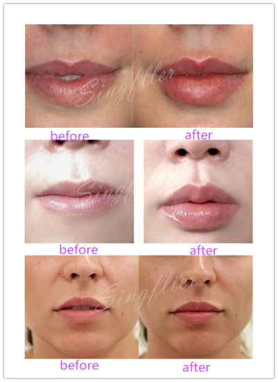 Ce Singfiller Hyaluronic Acid Injection Filler for Lip pictures & photos