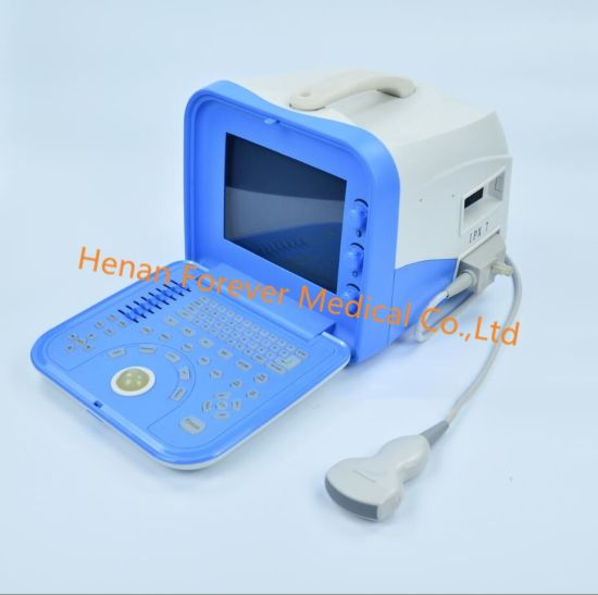 Medical Ultraso-Nograpgy Ultrasound Scanner for Animals or Human Use pictures & photos