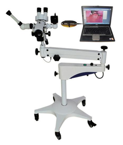 Ent Dental Optical Electronics Colposcope (JDY-1)