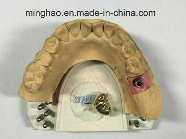 Implant Full Yellow Metal Crown From Shenzhen Minghao Dental Lab pictures & photos
