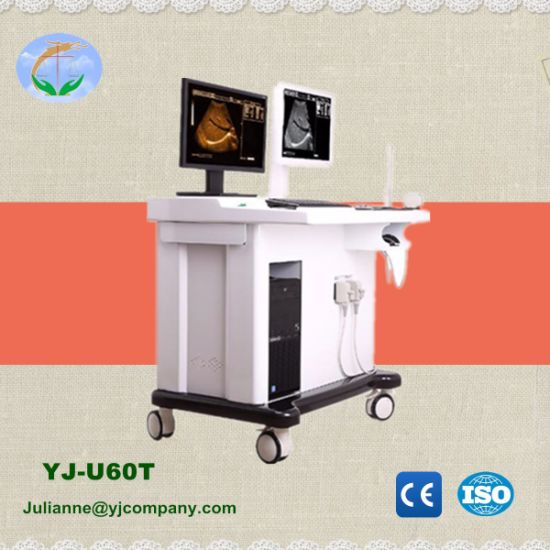 Black/White Trolley Utrasound Scanner with Workstation (YJ-U60T) pictures & photos
