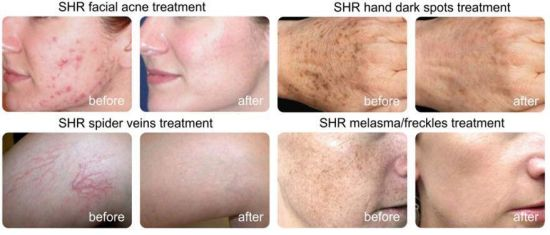 FDA Tga Professional IPL Shr Laser Skin Rejuvenation and Hair Removal pictures & photos
