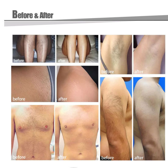 China Underarm Laser Hair Removal 808nm Diode Laser Machine