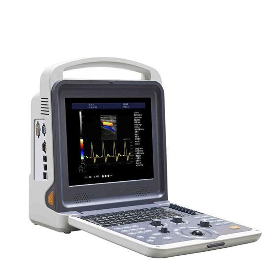 Ce Approved Medical Portable 4D Color Doppler Ultrasound Scanner