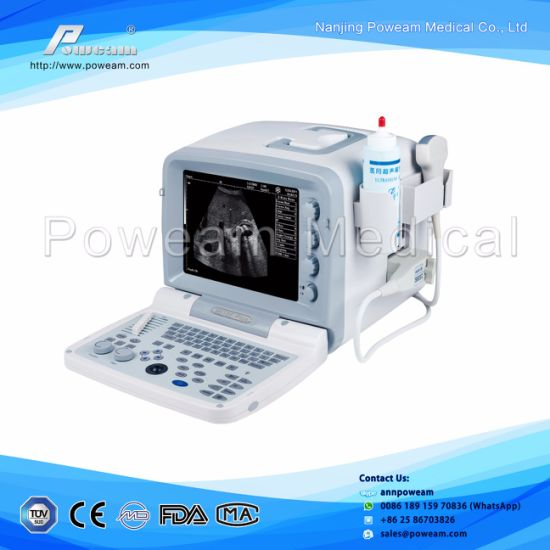 Ultrasound Scanner, Ultrasound Scanner for Nerves and Muscles pictures & photos