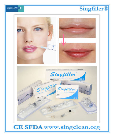 China Ce Singfiller Hyaluronic Acid Injection Filler for Lip