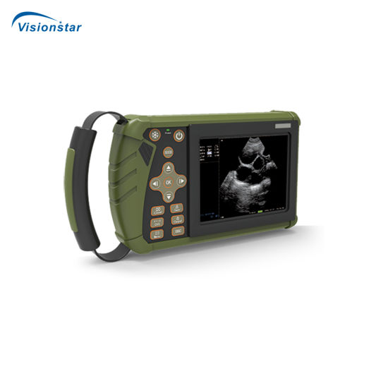 Portable Veterinary Ultrasound Scanner, Palm Type Vet Ultrasound Dw-Vet5 pictures & photos