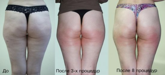 Body Shaping and Stretch Marks Removal Kuma Shape Device pictures & photos