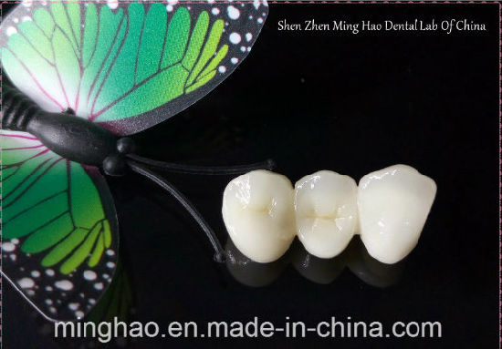 Dental Products of IPS. E-Max Crown From Shenzhen Minghao Dental Lab