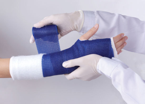 Medical Care Surgical Breathable Orthopedic Casting Tape and Splint