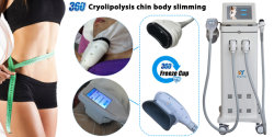 360 cryolipolysis