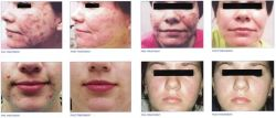 Treatment Effect Figures for Removaling The Acne(E-Light Machines)