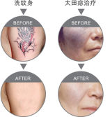 Treatment Effect Figures for Tattoo and Birthmark Removal (Laser Tattoo Removal Machines)