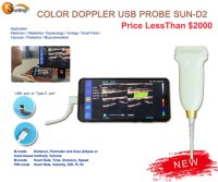 Usb color doppler
