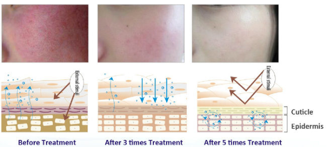 Shumin Star Treatment of Desensitization Control Inflammation