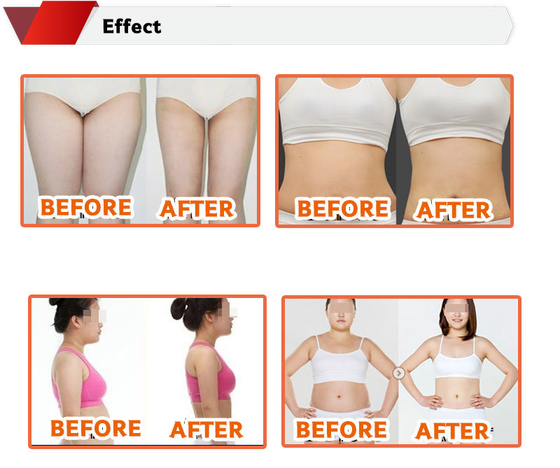 Lipolytic Solution 10ml Lipo Lab Ppc Solution for Weight Loss Slimming Injection